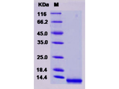 Human CCL8 / MCP-2 Protein (His Tag)