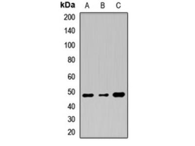 Anti-TMPRSS11A Antibody
