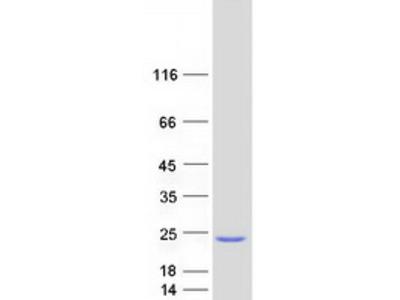 SKP1 (NM_170679) Human Mass Spec Standard