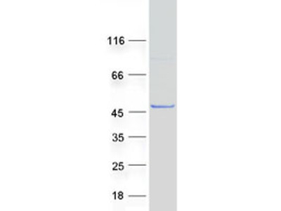 SPAG6 (NM_172242) Human Mass Spec Standard