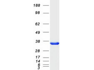 SULT4A1 (NM_014351) Human Mass Spec Standard