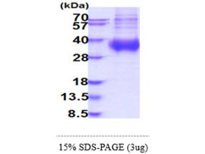 FCAR, 22-227aa, Human, His-tag, Baculovirus