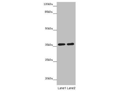 GNB1L Antibody