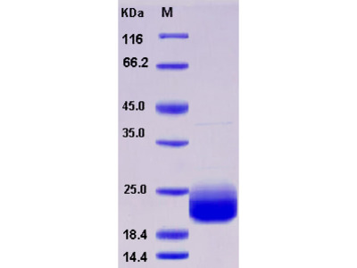 Recombinant Human LAIR2 / CD306 Protein