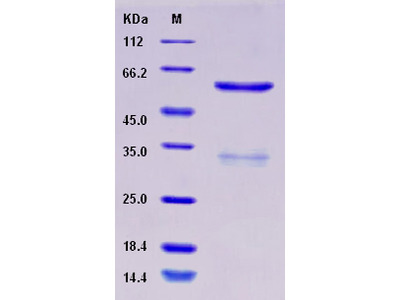 Recombinant Human SUV420H2 Protein (His & GST tag)
