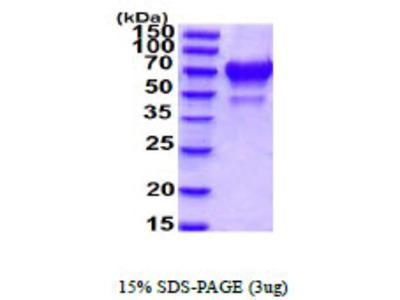 IBSP, 17-317aa, Human, His tag, Baculovirus
