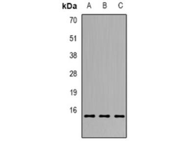 Anti-GILZ Antibody