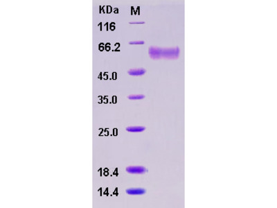 Recombinant Mouse sFRP4 Protein (His tag)