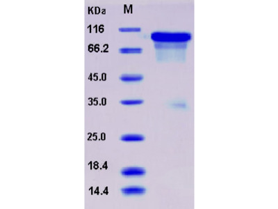 Recombinant Mouse ECM1 Protein (His tag)