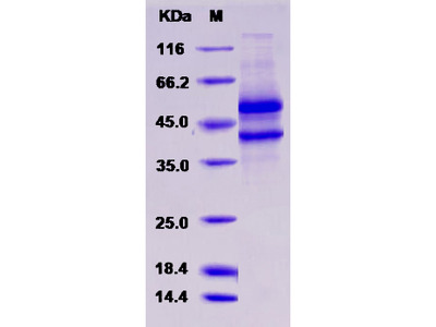 Recombinant Human SPOCK1 / Testican 1 Protein (aa 21-429, His tag)