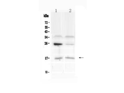 Anti-IL1F10/Il 38 Picoband Antibody