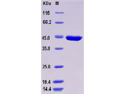 Recombinant Mouse SerpinB10 Protein (His tag)