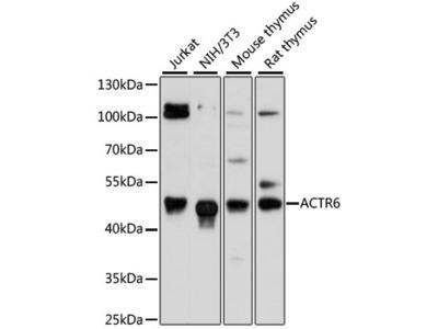 ACTR6 Polyclonal Antibody