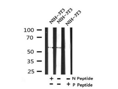 CTDSPL2 (Phospho-Ser9) Antibody