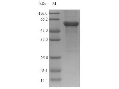 Recombinant Human Acid ceramidase (ASAH1)
