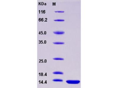 Recombinant Human FABP3 / H-FABP / M-FABP Protein