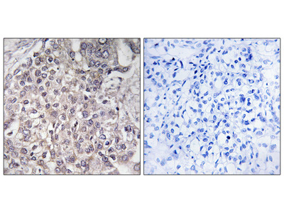Cytochrome P450 4F2 Antibody
