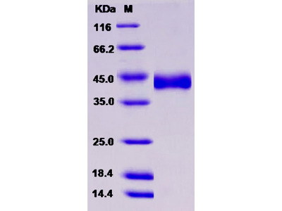 Recombinant Human CHST11 / C4ST-1 Protein (His tag)