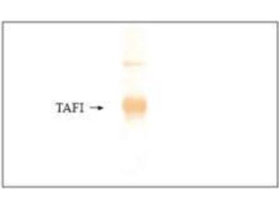 Anti-Carboxypeptidase B2 antibody [13H4]