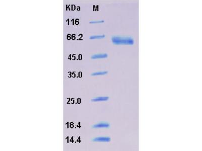 Recombinant Human SMOC1 Protein (His tag)