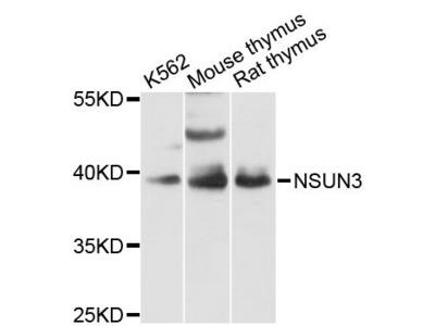 NSUN3 Polyclonal Antibody