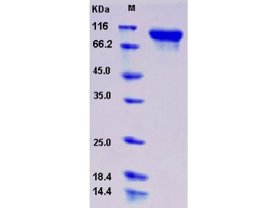 Recombinant Human Semaphorin 6A / SEMA6A Protein (His tag)