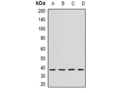 Anti-CK2 alpha Antibody
