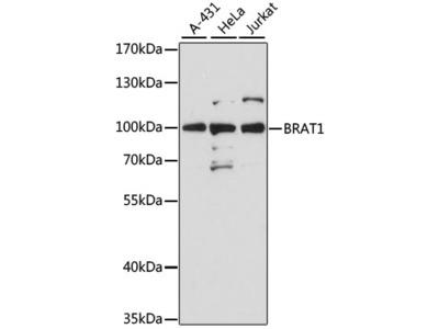 BRAT1 Polyclonal Antibody
