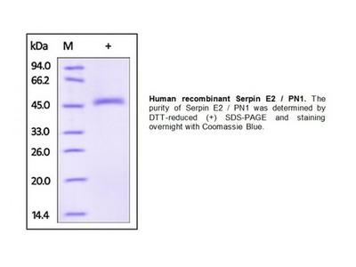 Human CellExp Serpin E2/PN1; human recombinant