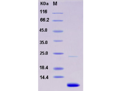 Recombinant Human S100A11 / S100C Protein