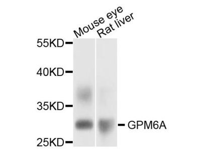 GPM6A Polyclonal Antibody