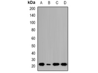 Anti-NTPCR Antibody