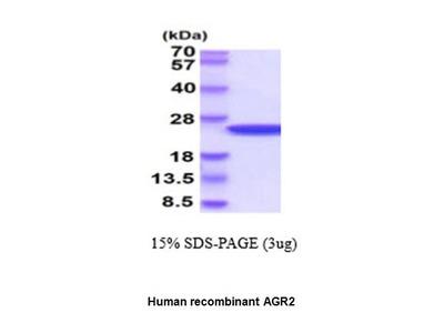 Anterior gradient 2 homolog; human recombinant