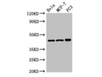PRKAR2A Antibody