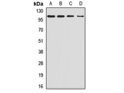 Anti-SMEK1 Antibody