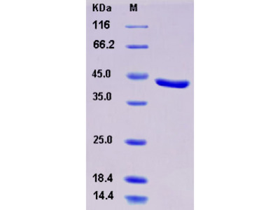 Recombinant Human CHI3L2 / YKL-39 Protein (His tag)