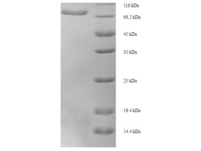 Recombinant Human D-2-hydroxyglutarate dehydrogenase, mitochondrial