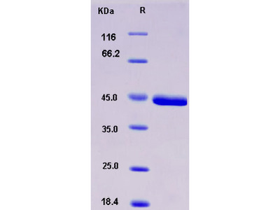 Recombinant Mouse CHI3L1 / YKL40 / gp39 Protein (His tag)