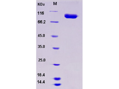 Recombinant Human SLITRK4 / Slitrk4 Protein (His tag)