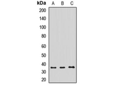 Anti-TOM34 Antibody