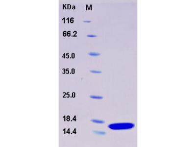 Recombinant Human FABP2 / I-FABP Protein (His tag)