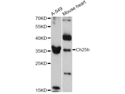 Ch25h Polyclonal Antibody