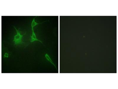 Collagen IX alpha3 Antibody