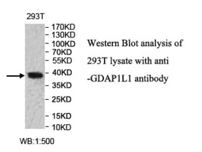 GDAP1L1 Antibody