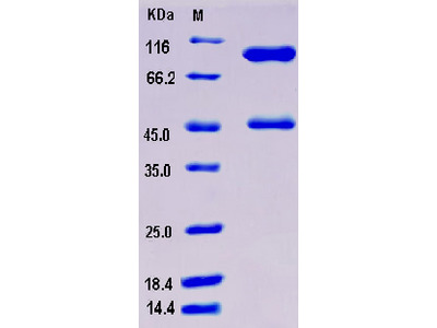 Recombinant Mouse Serpinb3c Protein (His tag)
