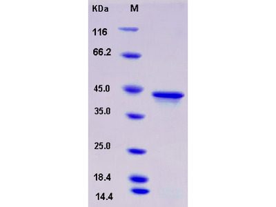 Recombinant Human HOXA1 Protein (His tag)