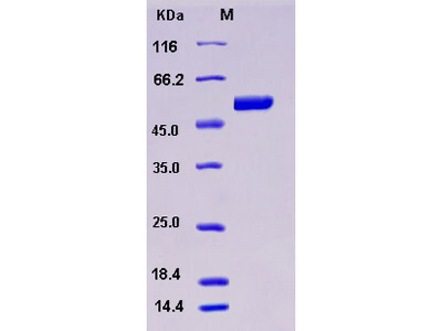 Recombinant Human S100A3 / S100E Protein (His & MBP tag)