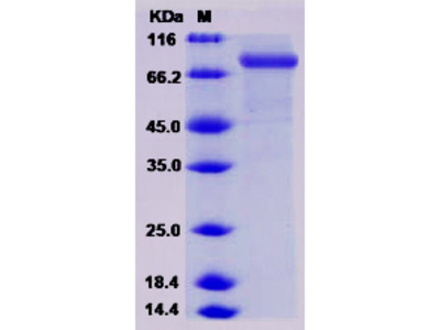 Mouse CHST5 / GlcNAc6ST-3 Protein (Fc Tag)
