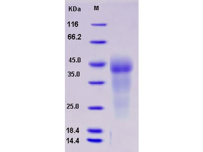 Recombinant Human GPR37 Protein (His tag)