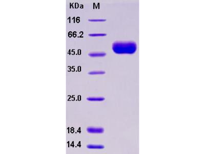 Recombinant Human IL-1R8 / IL1RAPL1 Protein (His tag)